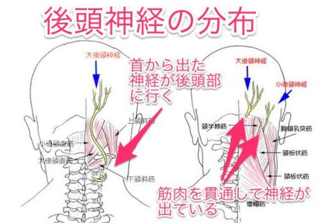 後頭神経痛の原因
