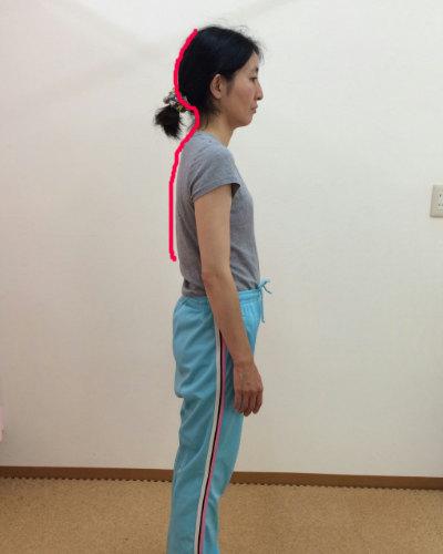 首の生理的湾曲