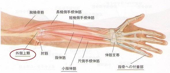 テニス肘の原因の解説