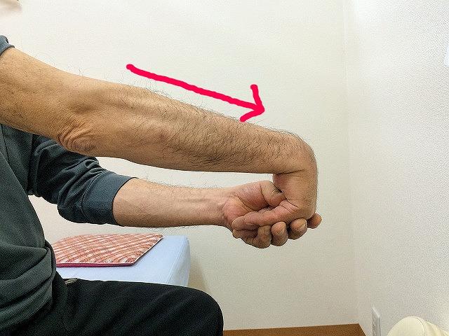 テニス肘のストレッチ方法