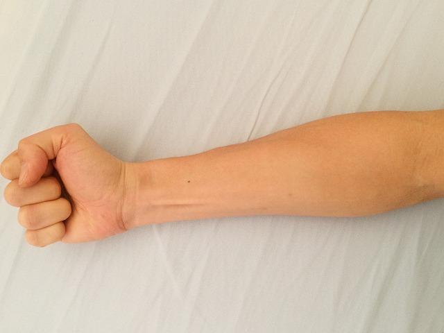 手を握ると腕の筋肉が動く