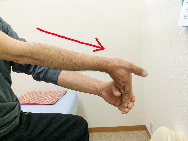 肘の内側のストレッチ方法