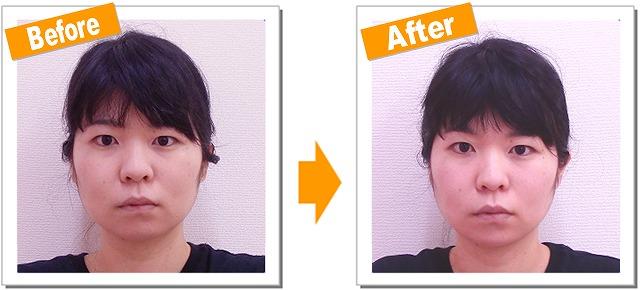 小顔矯正の効果をモニタリング!左右のアンバランス(Iさん20代)Vol.1