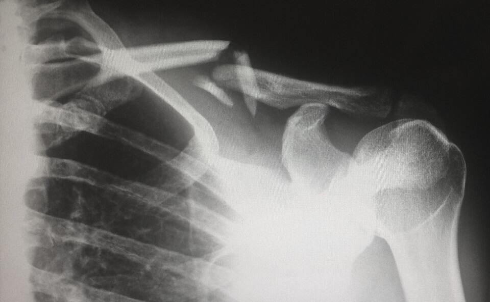 肩のレントゲン