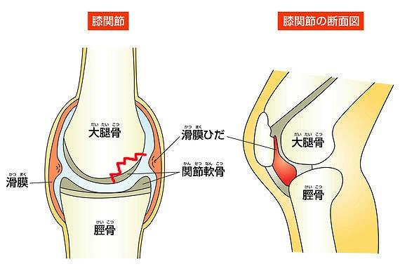 離断性骨軟骨炎(りだんせいこつなんこつえん)