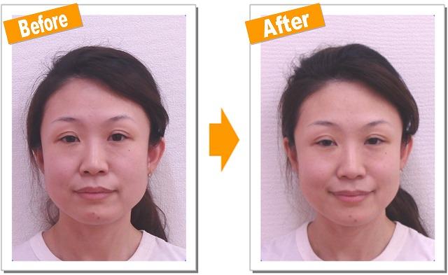 【京都で小顔矯正】小顔の効果を発表!Hさん(30代)『フェイスラインのたるみ』Vol.1