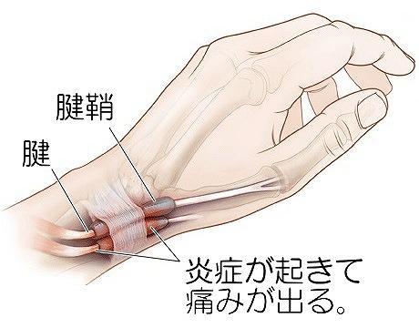 手を握ると指の関節が痛い病名の解説