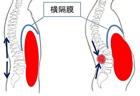 腰痛コルセットの付け方・巻き方!効果が上がる方法を解説します
