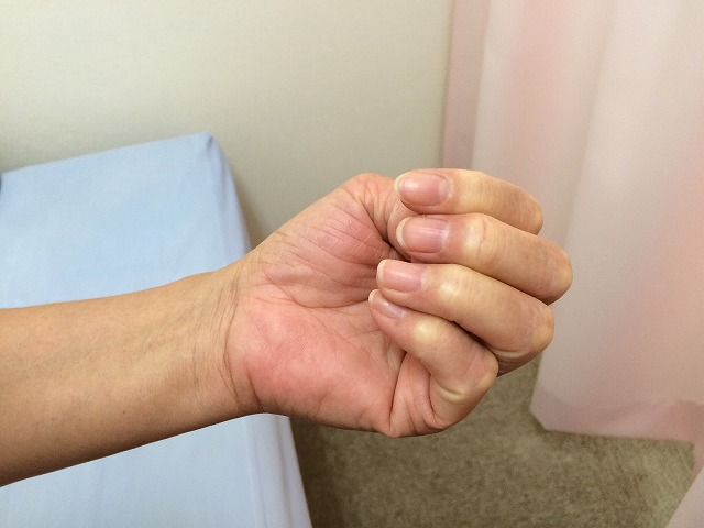 バネ指は治ります!手術を考えていたほどのバネ指が治療で改善した患者さんの声!