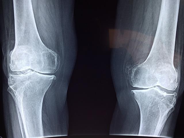 【随時追加】膝の痛みについてこれまで頂いた質問をまとめました!