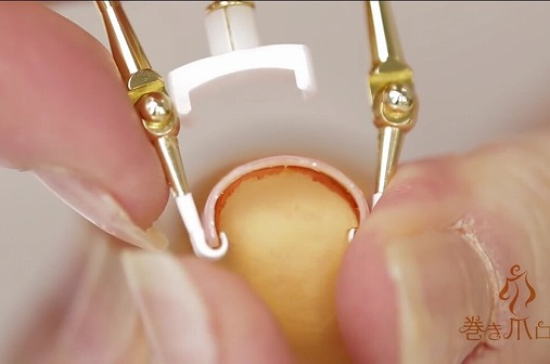 巻き爪が痛い!痛すぎる巻き爪の治し方と原因!すぐに治したいならコレ使いな
