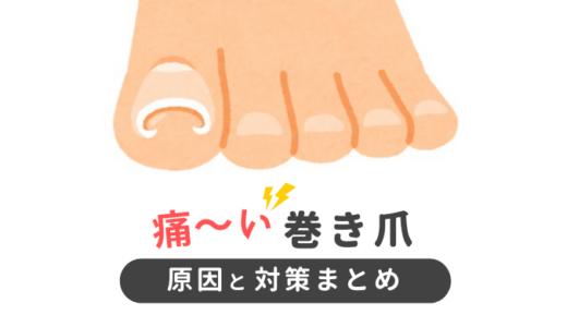 痛い巻き爪の治し方と原因を徹底解説!すぐに治したいなら巻き爪ロボがおススメ