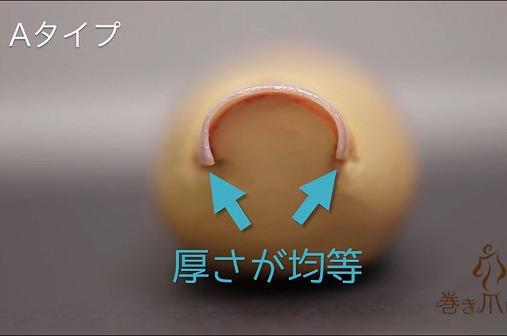 巻き爪ロボAタイプ