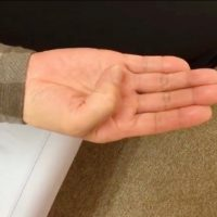 指が動かしにくい!指が動かしにくいバネ指がよくなった患者さんの声!