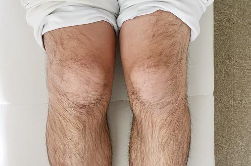 3ヵ月後に撮影した膝