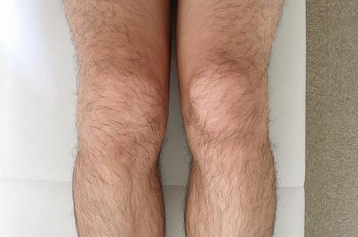 膝にたまった水を自然に治癒させる方法を自分で試してみた!