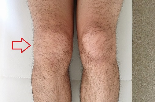 9月16日に撮影した膝の様子
