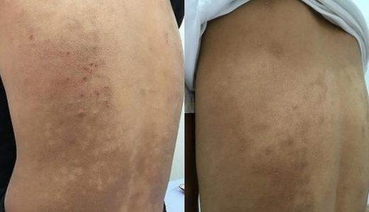 肌荒れとかゆみのアトピー性皮膚炎!合計15回の治療でほぼ完治しました