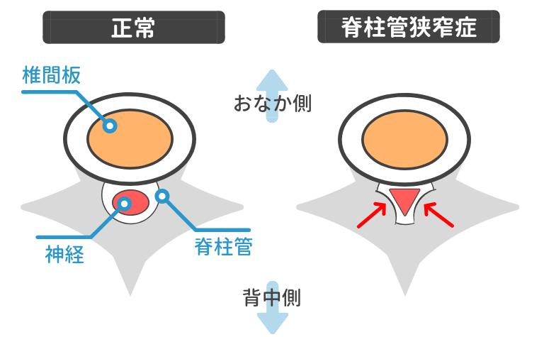 脊柱管狭窄症図解